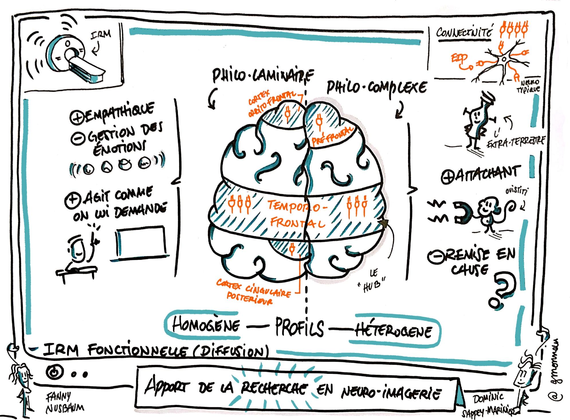 Apport de la recherche en neuro-imagerie : caractéristiques cérébrales des EIP
